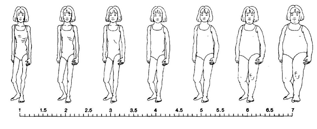 Image for Collins Child Female Scale. Adapted from Collins, M. E. (1991). Body figure perceptions and preferences among preadolescent children. International Journal of Eating Disorders, 10, 199-208.