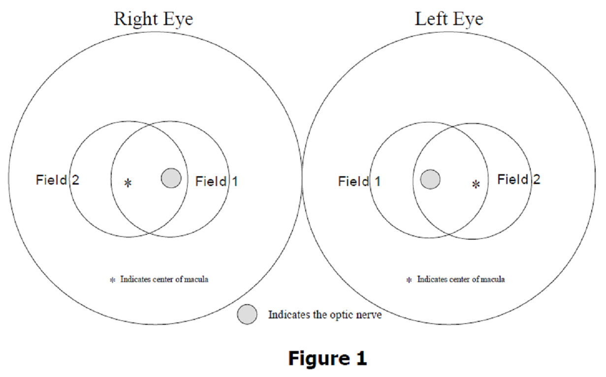 Image for Diagram of the location of two eye fields